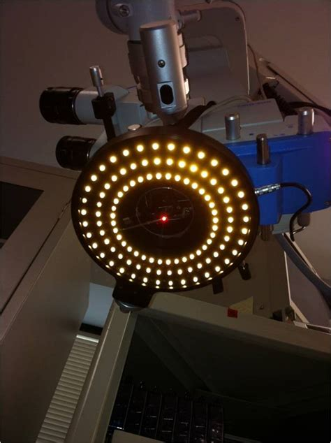 post cataract surgery light refinements in cataract surgery erdey searcy eye group