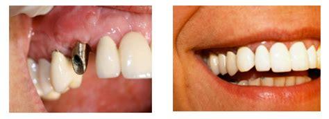 wann 1 zahn implantologie und implantate juli 2010