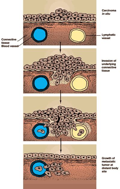 diagram of colon cancer systems of staging for colorectal cancer stanford health