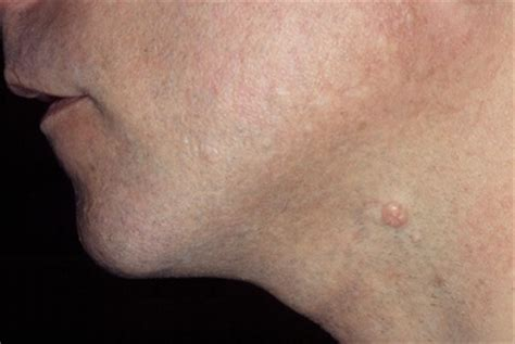 skin colored bumps on elbows molluscum contagiosum is caused by a virus small white