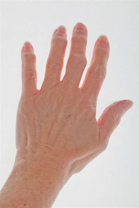 finger arthritis signs symptoms  treatment