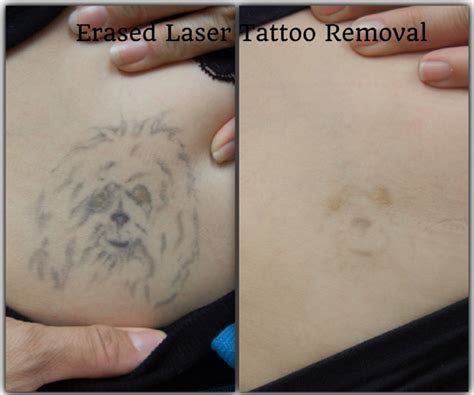 erased laser tattoo removal before after erased laser removal