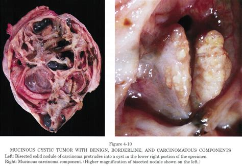 tumor pictures pathology outlines mucinous cystadenocarcinoma carcinoma
