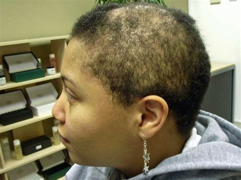 hairstyles for women with alopecia hairstyles for black women hair loss