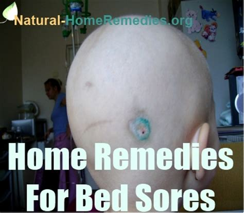 treating bed sores bedsores home remedies bedsores treatment natural