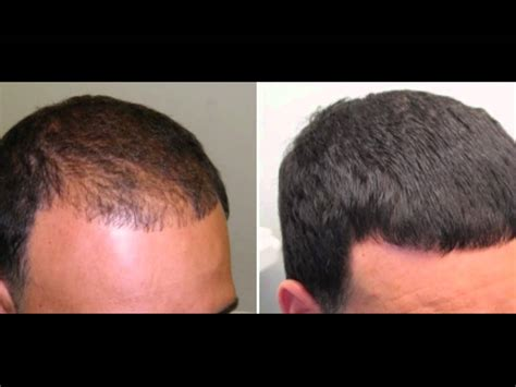 rogaine before and after pictures hair growth treatment beauty skin whitening health