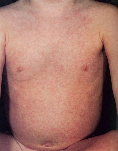roseola images phys 38394848 study guide 2012 13 ahdkjf instructor