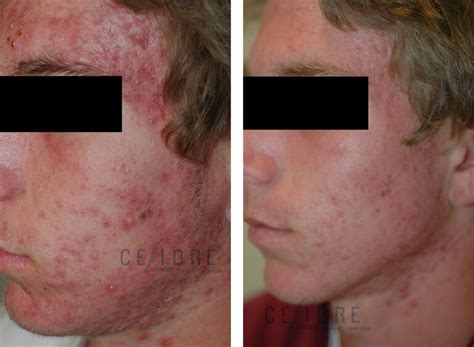 Skincare For The Treatment Of Acne by Laser Acne Treatment Pictures Photos
