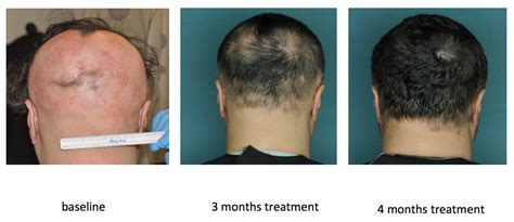 body hair loss in men over 50 drug restores hair growth in patients with alopecia areata
