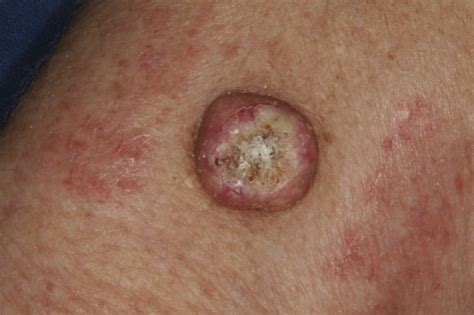 skin tumors pictures of squamous cell skin cancer pictures photos