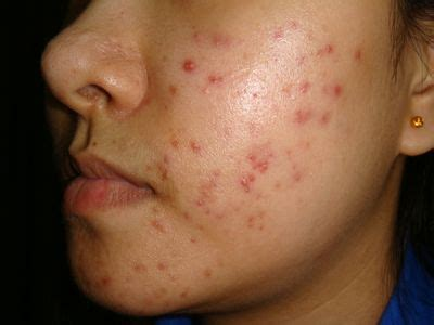 12 Best Tips On Treating Acne by Treatment Simply Stylish Therapy For