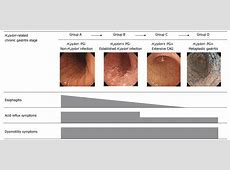 Assessment of gastroesophageal reflux disease by ... La Classification For Esophagitis