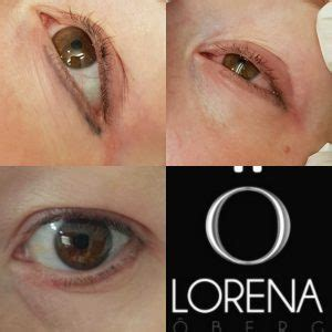 eyeliner tattoo removal philippines tattoo eyeliner removal correction migration lorena oberg