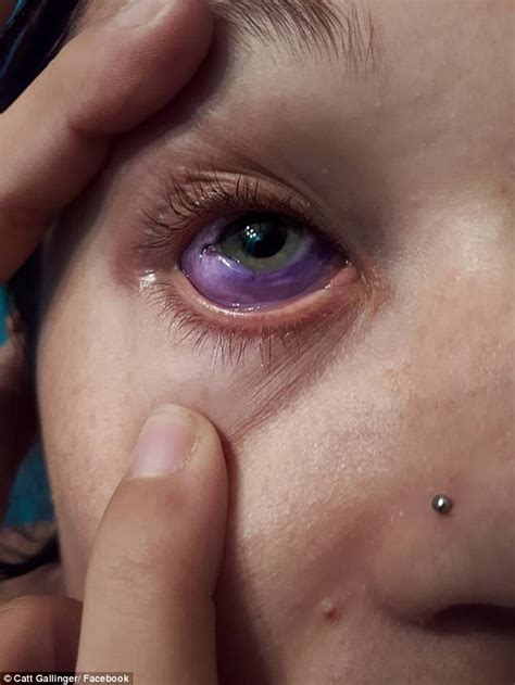 eyeball tattoo removal canadian model s eye goes horribly wrong daily
