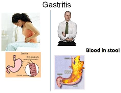Can Dairy Cause Blood In Stool by Digestive Diseases Science Department St George S College