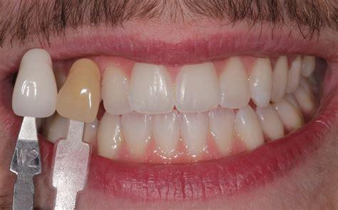 enlighten teeth whitening dentists