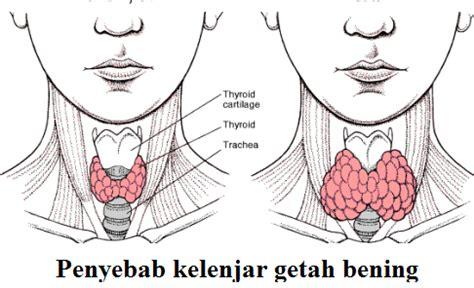 Obat Telinga Berdarah Obat Kelenjar Getah Bening | kelenjar getah bening obat penyebab gejala dan