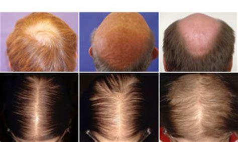 male pattern hair loss dermnet nz buy hair loss treatment online doctor fox