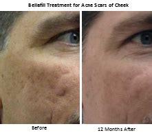 bellafill for results of acne scars the latest acne scar treatment bellafill