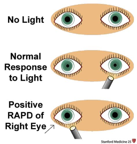 swinging light test pupillary responses stanford medicine 25 stanford medicine