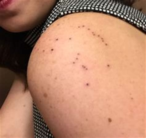 tattoo removal affect freckles top freckles constellation tattoo images for pinterest tattoos
