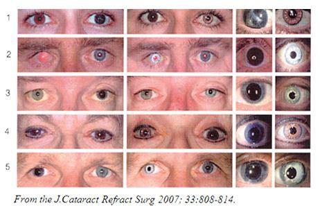 rarest eye color chart eye color on eye colors eye color