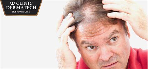 safest hair transplants safest hair transplants safest hair transplants laser hair