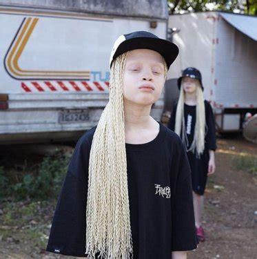 albino ikizlerin güzelliği fotoğraflara yansıdı