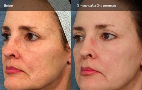 ipl face rejuvenation best of beauty clinic