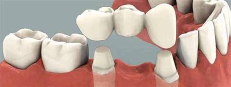 dental bridge tooth replacement option bridge dental crowns