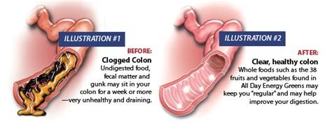 Colon Detox Symptoms complete guide to gastrointestinal cleansing to flush out