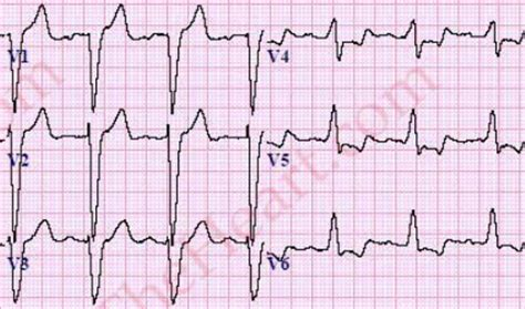 lbbb pattern top 5 mi ecg patterns you must know learntheheart com