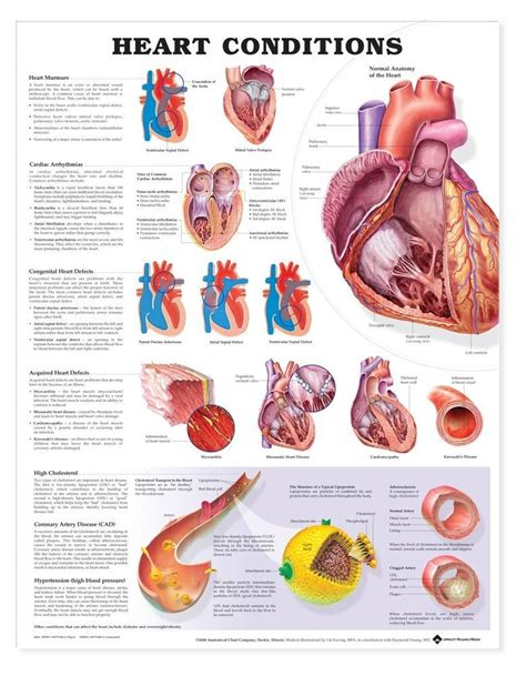 hearts and sharts anatomy chart conditions
