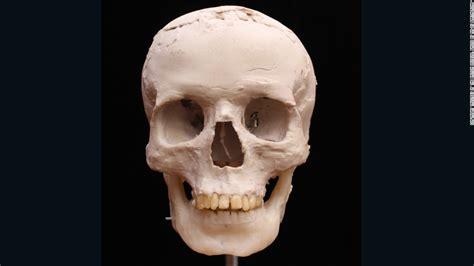 list  synonyms  antonyms   word skull