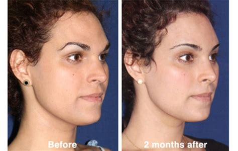 facial feminization procedures transgender plastic surgery forehead contouring forehead reconstruction or shaving
