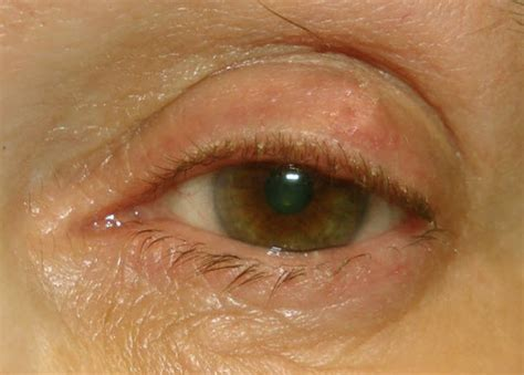 cyst on s eyelid pin meibomian cysts pictures on