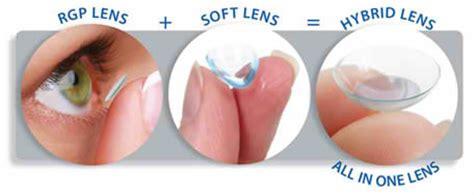 contact lense for keratoconus patients, neil esposito