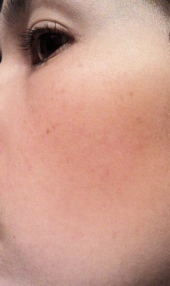 light patches on face light brown spots on face ipl photo doctor answers tips