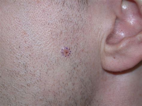 in bcc early basal cell carcinoma images