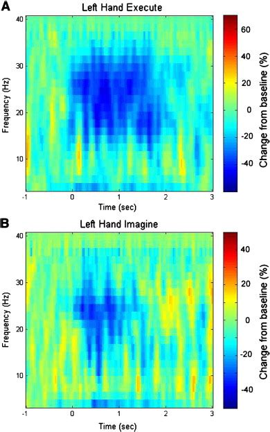 Alarm Motor Spectrum event related spectral perturbations at a sensor in the proximity of the right primary motor