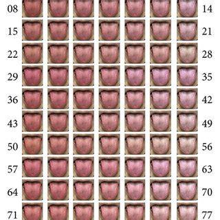 tongue color tongue color diagnosis included five colors pale pale