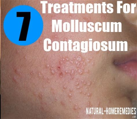 7 best treatment options for molluscum contagiosum how