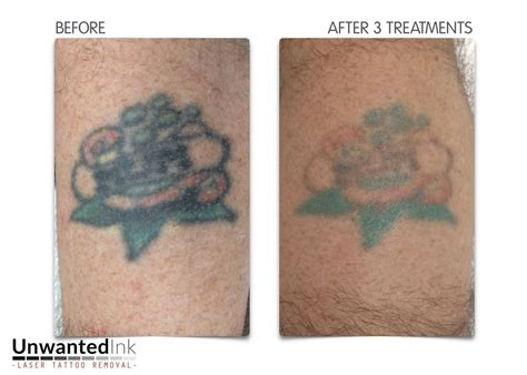 green ink tattoo removal after 30 years this poor had seen better days