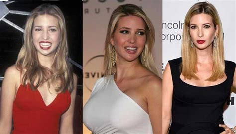 How Soon Can I Shower After Breast Augmentation by Ivanka Plastic Surgery Before And After Pictures 2016