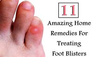 home remedies for blisters 11 amazing home remedies for treating foot blisters