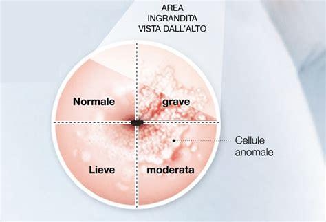 cellule anomale pap test i virus si trasmettono per via sessuale e si replicano