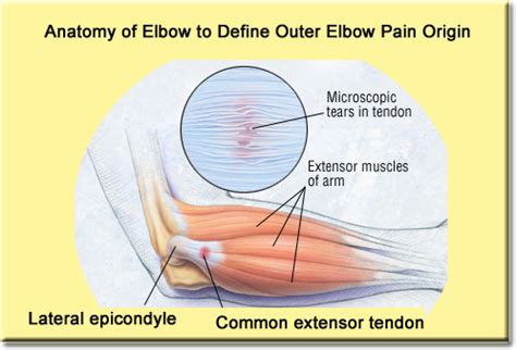 elbow pain benching erase outer elbow pain fast in just 5 steps tenniselbowsecretsrevealed com