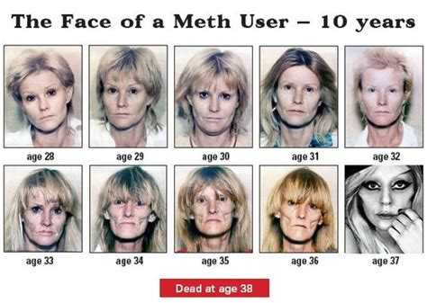 Detox From Meth Use by Gaga Methhetamine Addiction รтυғғ ᴥ