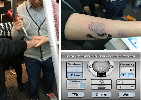 south korean tattoo removal q switched yag laser painless 1064 532nm laser tattoo