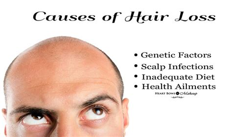 hair loss latest news hair in loss reason woman natural home remedies for hair loss heart bows makeup
